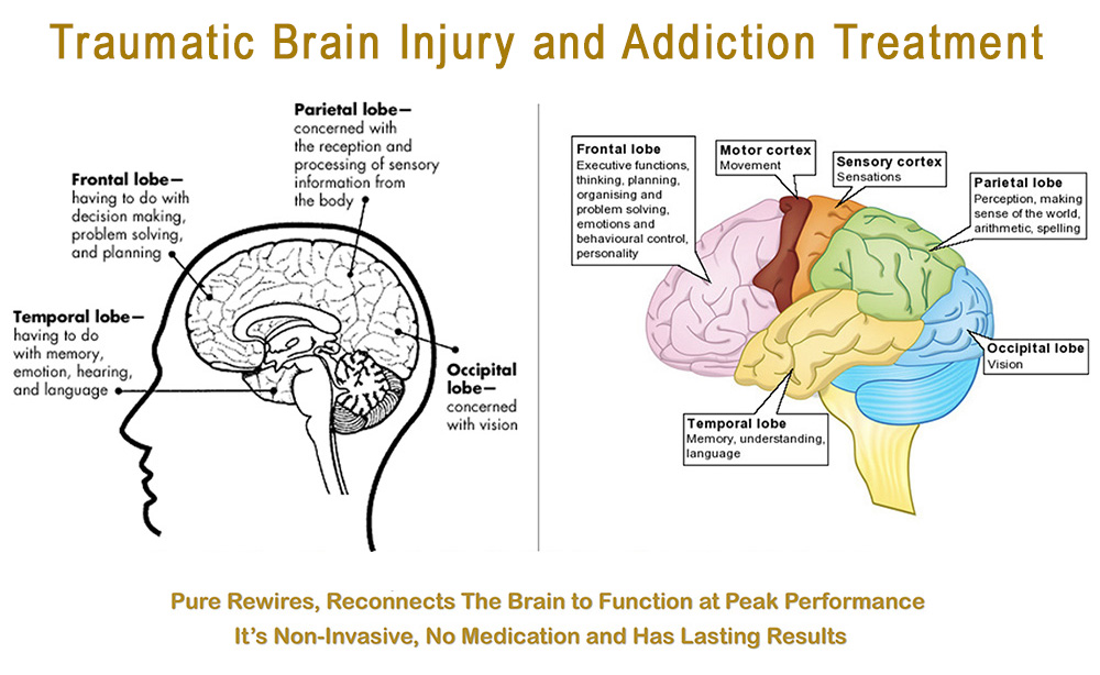 tbi and addiction treatment